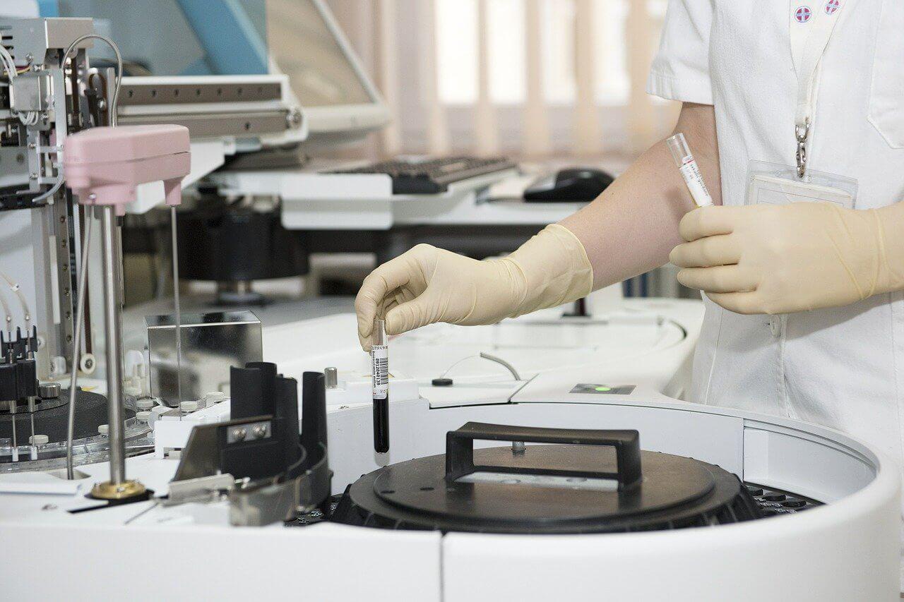 炎症性マクロファージはROSによるDNA損傷の結果としてNADサルベージに依存する